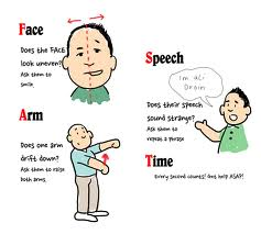 Identify stroke with these symptoms